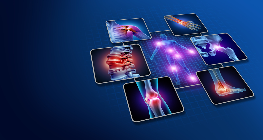 Body joint pain concept as human skeleton and muscle anatomy of the body with a group of sore joints as a painful injury or arthritis illness symbol for health care and medical symptoms with 3D illustration elements.
